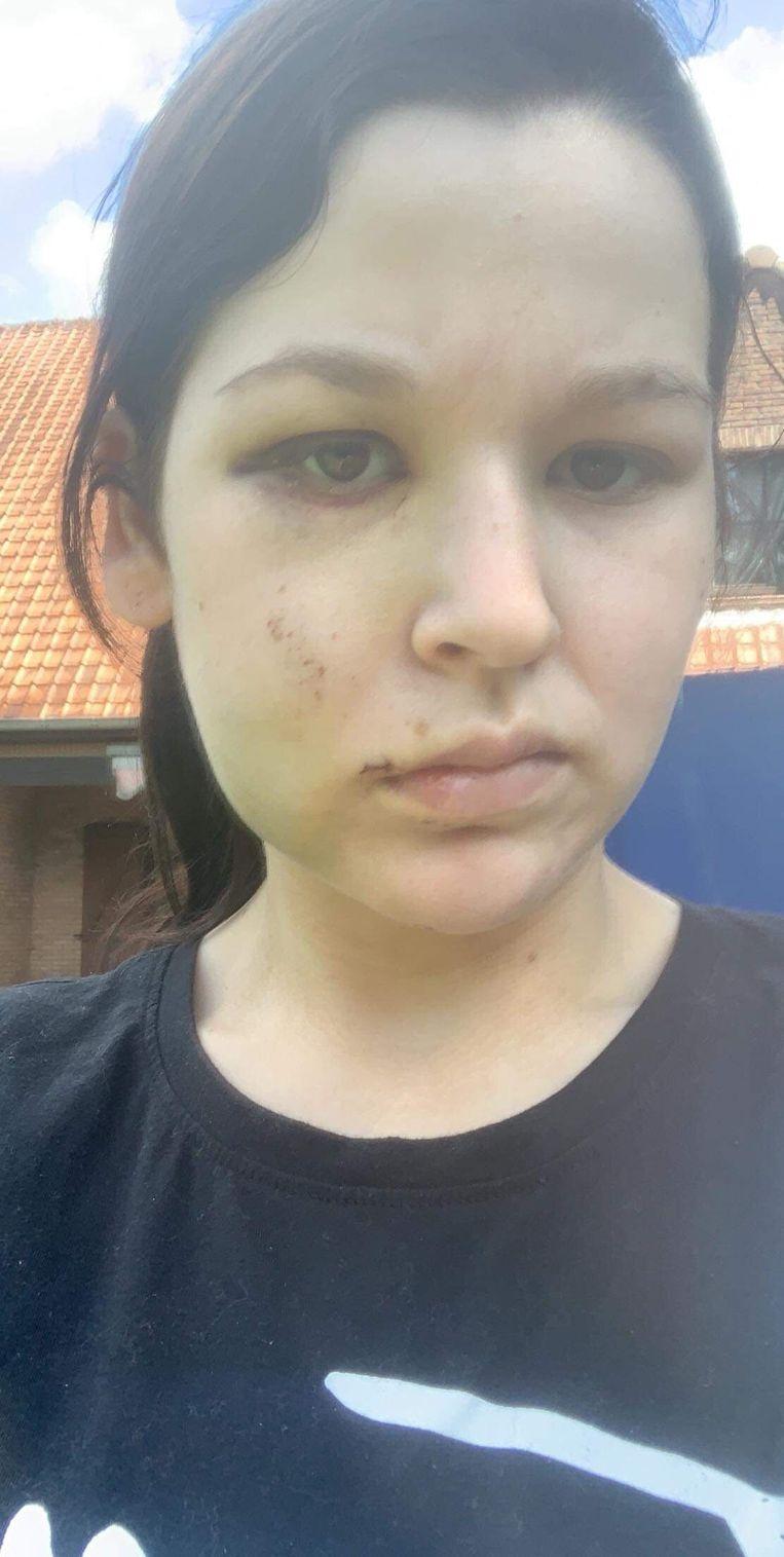 Jessica Temmerman (19) heeft nog steeds een gezwollen aangezicht na de aanval.