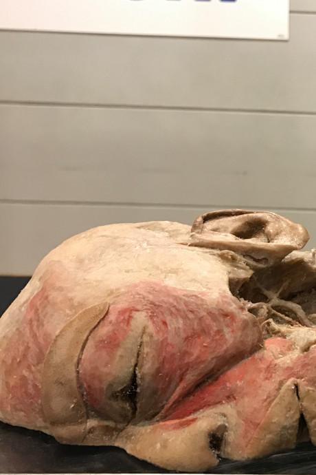Kijken naar dode mensen: Real Human Bodies zijn terug in Vlissingen