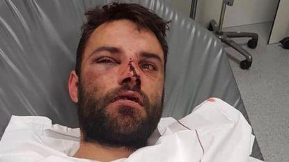 Man zonder aanleiding bont en blauw geslagen met kandelaar in loungebar
