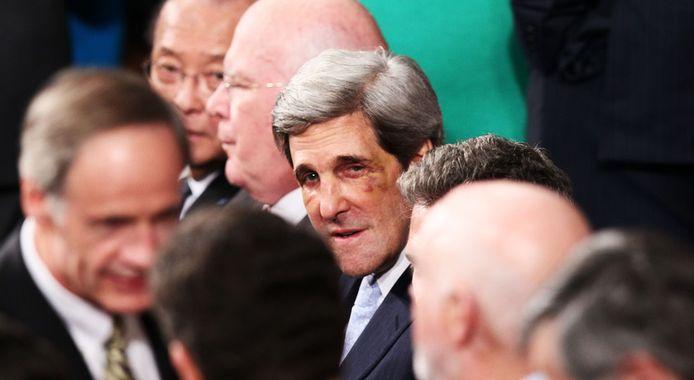 """Janvier 2012. Les deux yeux au beurre noir de John Kerry relance la rumeur d'un recours à la chirurgie esthétique. """"Un banal accident de Hockey"""", se contentera-t-il de dire."""