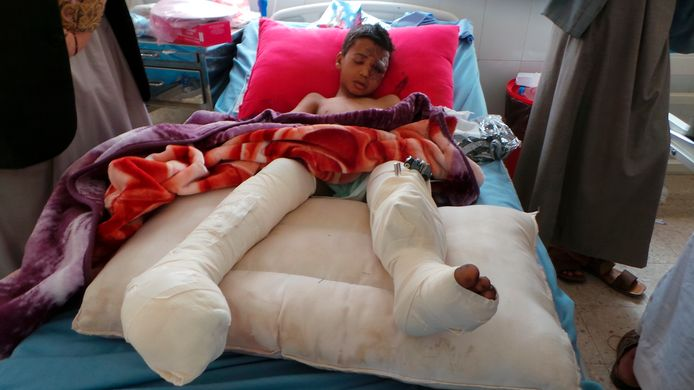 Een van de gewonde kinderen slaapt in het ziekenhuis een dag na de luchtaanval op Jemen.