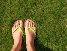 Zonder zorgen je slippers aan? Zo maak je korte metten met een kalknagel