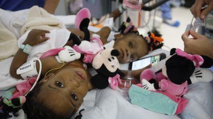 Franse chirurgen slagen erin Siamese tweeling van elkaar te scheiden