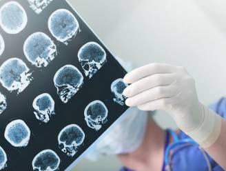 Britse neurologen waarschuwen voor zware herseninfecties bij patiënten met milde coronasymptomen