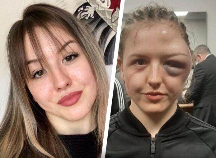 De Duitse boksster Cheyenne Hanson, voor en na haar gewonnen gevecht.