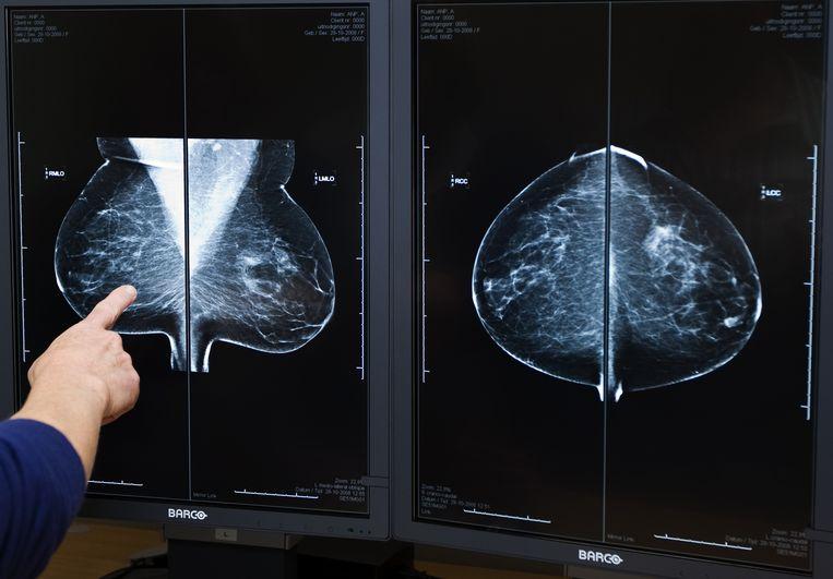 Ziekenhuizen zeggen op dit moment nog altijd 10 tot 20 procent van de reguliere zorg af  vanwege de hoeveelheid coronapatiënten. Beeld ANP XTRA