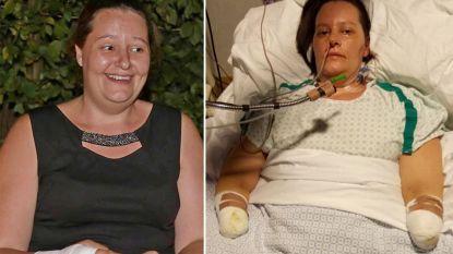 33-jarige moeder slachtoffer van vleesetende bacterie: dokters amputeren benen en onderarmen