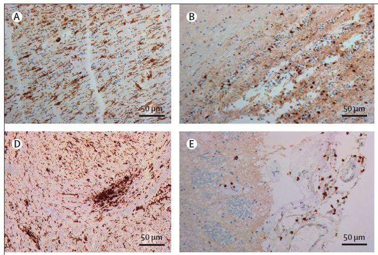 Weefselmonsters van een overleden patiënt, met in zwart de opgezwollen 'microgliacellen'. Beeld The Lancet/Amsterdam UMC