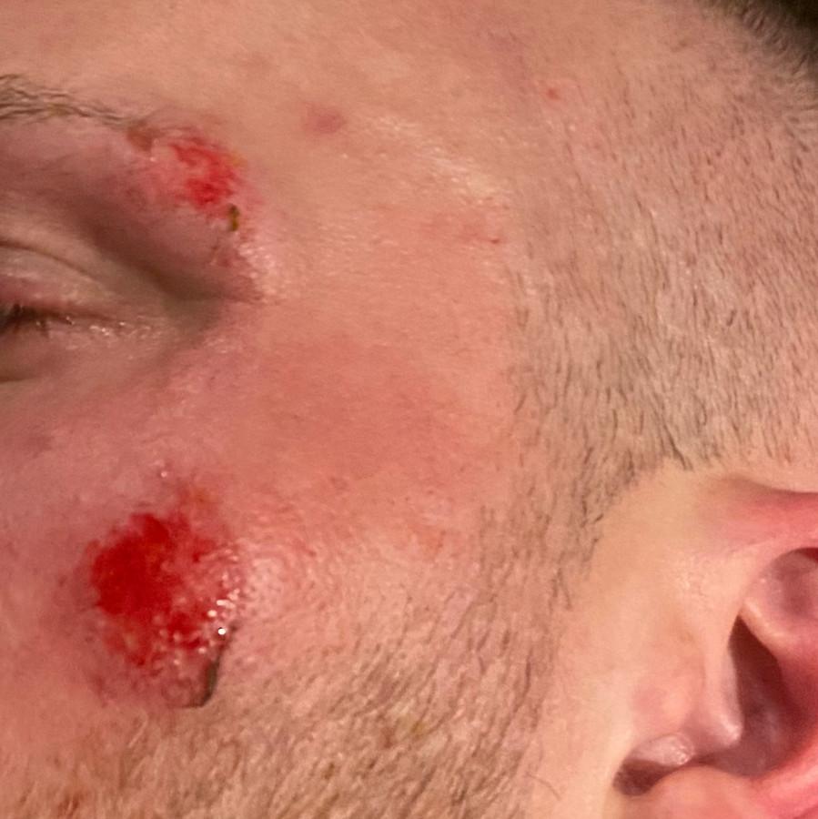 Schaafwonden in zijn gezicht.