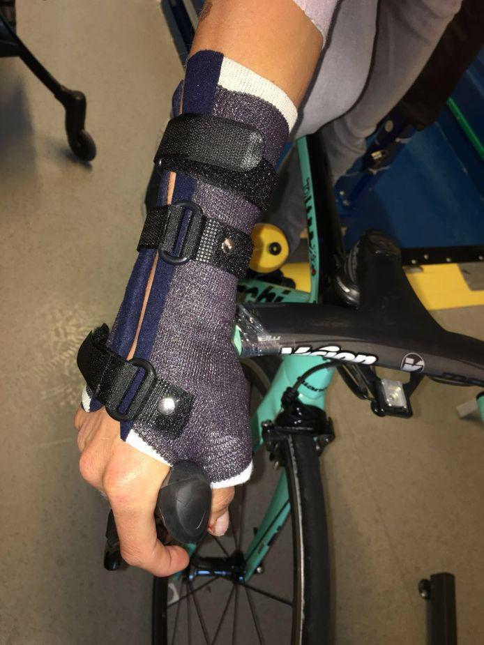 Koen Bouwman fietst de komende tijd met een brace om zijn hand.