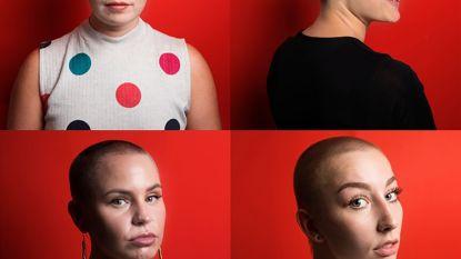 Vrouwen met (vrijwel) kaalgeschoren hoofd, een statement of slechts een modegril?