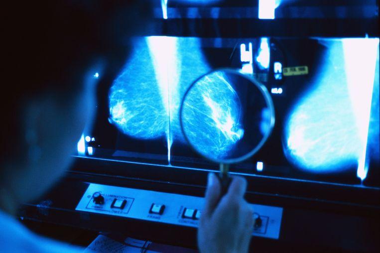 Een vrouw wordt gescreend op borstkanker.  Beeld Royalty-Free/Corbis
