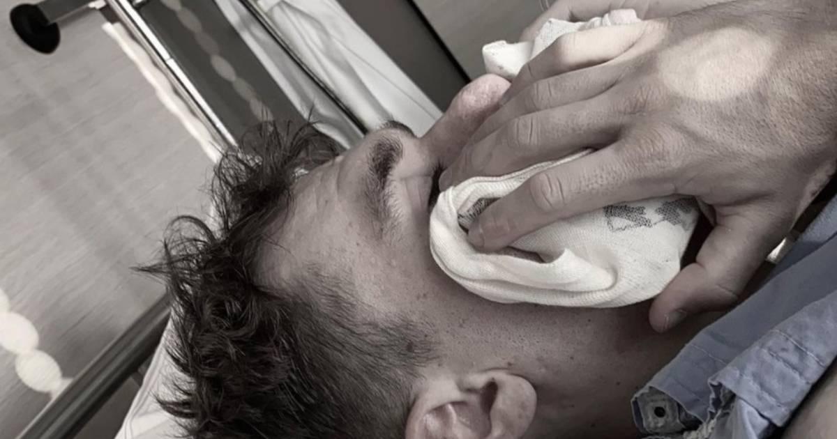 Fabio Jakobsen a subi une nouvelle intervention chirurgicale au visage - 7sur7