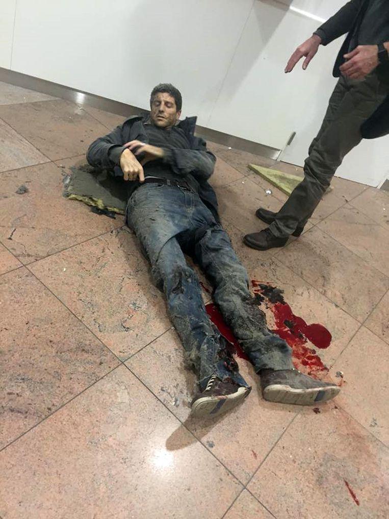 Een gewonde bij de aanslagen in Brussel. Beeld ap