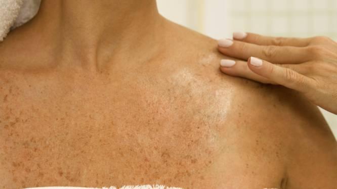 Vlekkerige en verkleurde huid? Zo herstel je de schade