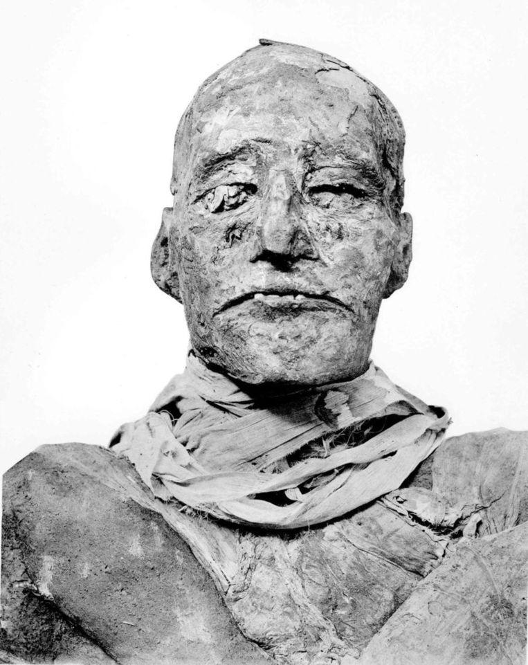 De mummie van Ramses III. Beeld BMJ