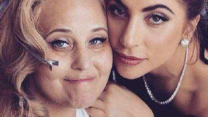 Lady Gaga en Sofia Vergara roepen vrouwen op om hun borsten te laten controleren