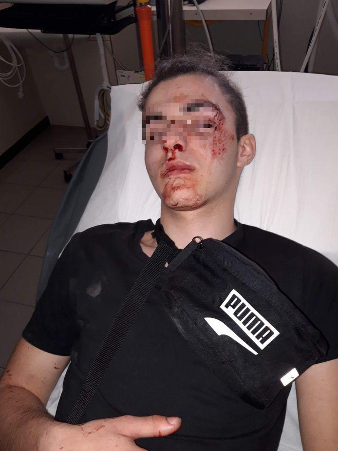 Vooral rond zijn oog had Jarno meteen pijn. Uiteindelijk bleek hij een zware barst in zijn oogkas te hebben.