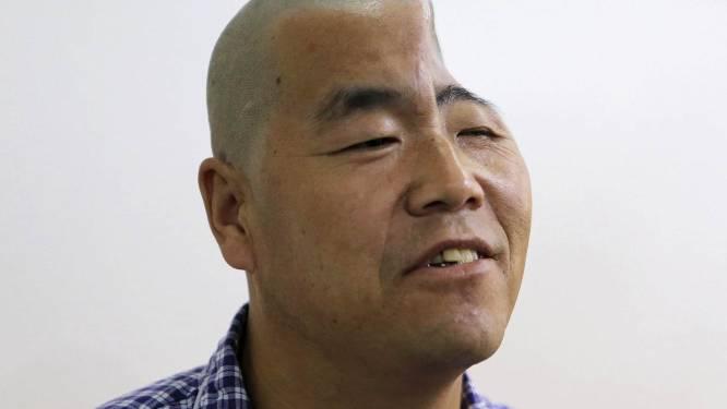 Chinese man krijgt nieuw stuk schedel door 3D-printer