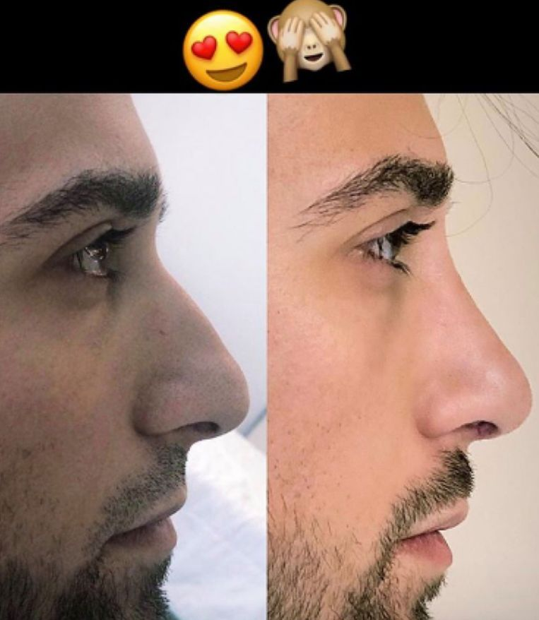Fabrizio met nieuwe neus
