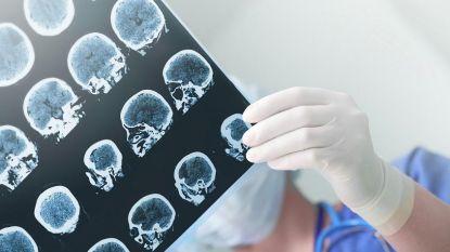 Hersenscan kan ziekte van Alzheimer vroegtijdig vaststellen