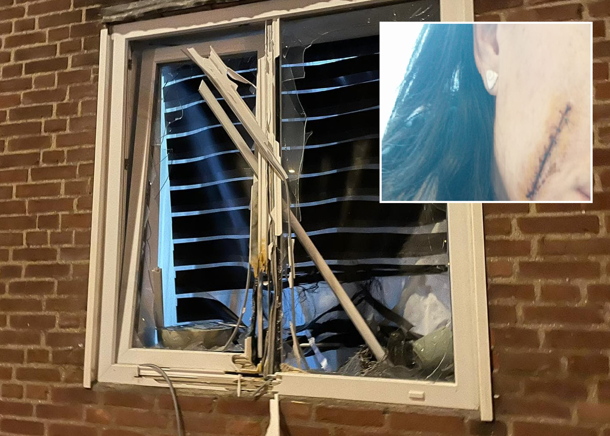 Litteken op wang van 33-jarig slachtoffer van vuurwerk tijdens rellen in Tilburg.