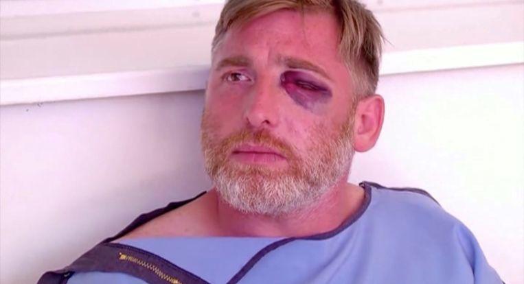 De 37-jarige Lasjkarava liep bij het incident ernstige botbreuken in het gezicht op. Beeld REUTERS