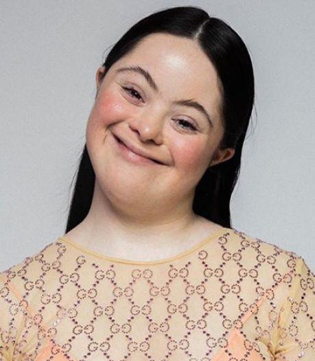 Atteinte de trisomie 21, le mannequin Ellie Goldstein pose pour Gucci et Vogue