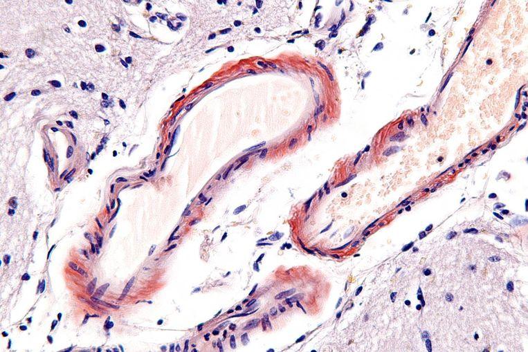 Hersenweefsel. De rode kringen zijn bloedvaten. Groen-roze: de eiwitophopingen. Beeld