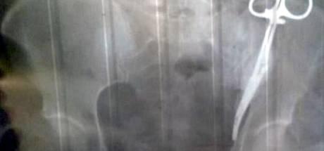 Russische vrouw loopt 23 jaar rond met chirurgische klem in maag