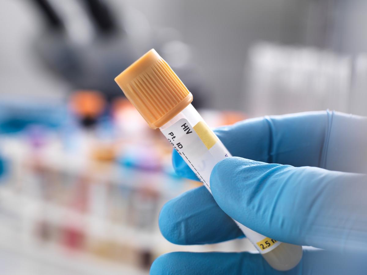 Beeld ter illustratie, het aantal hiv-diagnoses is vorig jaar opnieuw gedaald.