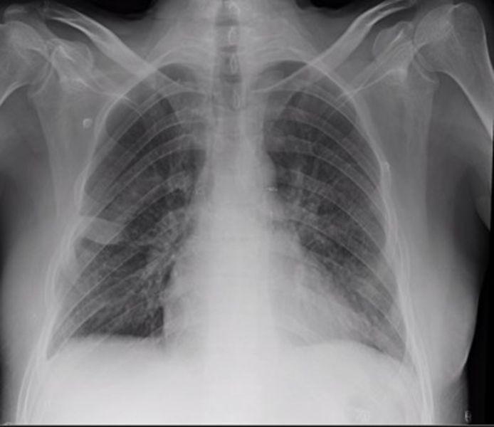De nieuwe longen van de patiënt vier weken na de transplantatie.