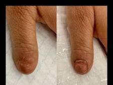 Patiënt zonder nagel krijgt er eentje in 3D getatoeëerd: 'Een borst zonder tepel is ook niet compleet'