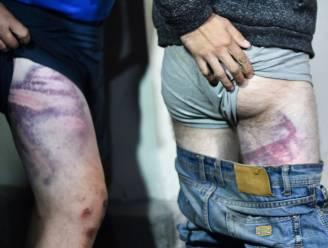 Beelden liegen niet: opgepakte burgers in Wit-Rusland werden afgeranseld en gemarteld