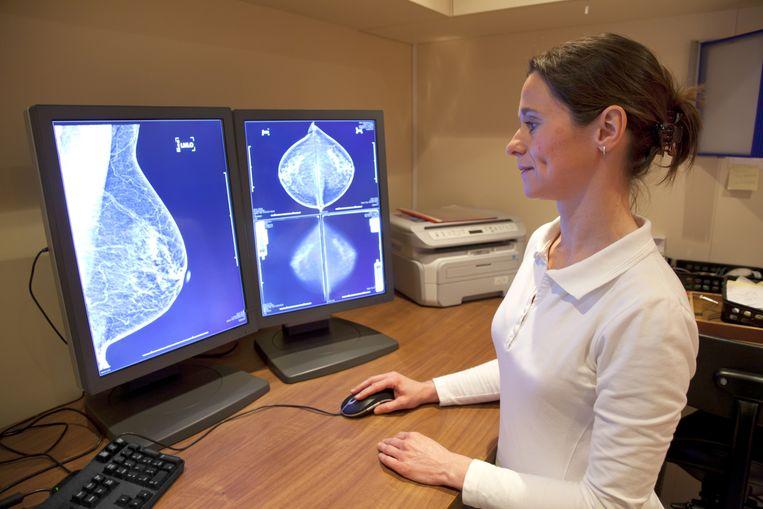 Op een mammografie kan borstkanker in een vroeg stadium worden ontdekt. Beeld thinkstock
