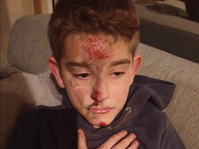Leon (9) liep vooral veel schaafwonden op, ook in zijn gezicht.