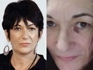 Advocaten verspreiden foto van Ghislaine Maxwell met gekneusd gezicht