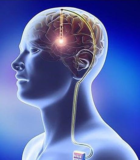 Electrodes in het brein verminderen Gilles de la Tourette-tics