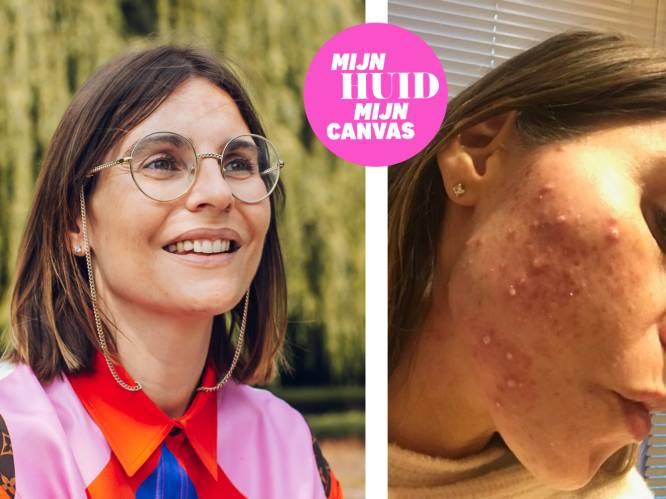 """""""Omdat ik geen puisten wou, hebben we gewacht met een tweede kindje"""" Marie werd jarenlang geteisterd door acne, dermatoloog Ingrid geeft advies"""