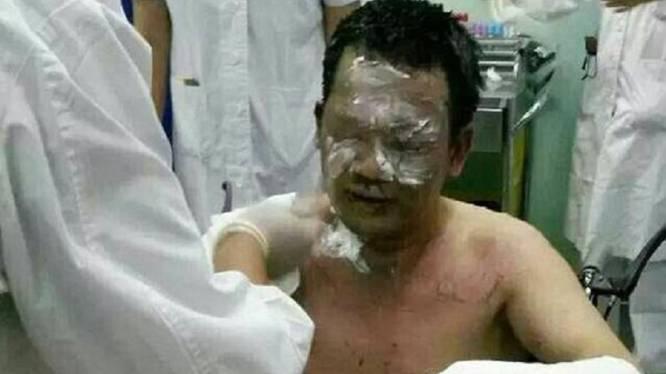Kankerpatiënt steekt zijn dokter in brand