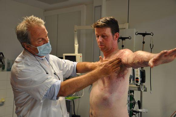 Tom Vanheule liep zware brandwonden op aan zijn bovenlijf na een ongeval met een cowboysteak. Hier wordt hij onderzocht door dokter Stan Monstrey van UZ Gent.