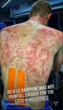 Tim Declercq postte een foto van zijn toegetakelde rug.
