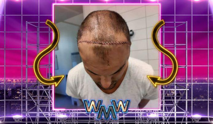 In de show was een foto van Stephans litteken te zien.