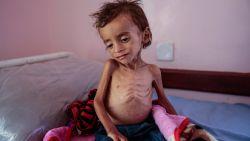 Vergeten conflict: 85.000 kinderen omgekomen van de honger in Jemen in 3 jaar tijd