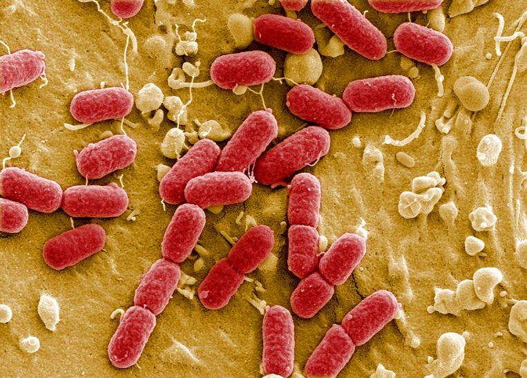 De E. colobacterie onder de microscoop. Beeld AFP PHOTO HO / Manfred Rohde Helmholtz-Zentrum für Infektionsforschung (HZI)