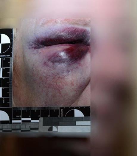 Politie hoopt op anonieme tips mishandeling Wageningse