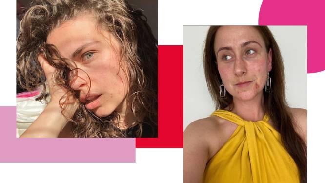 Fuck de filter: Vlaamse en internationale influencers doen oproep voor meer puistjes, poriën en rimpels op Instagram