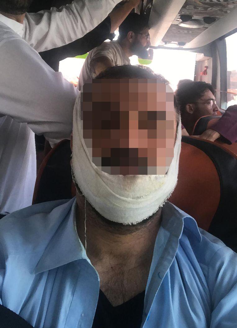 Hotak Jahanshir, de Belg die eerder werd geraakt door een rubberkogel, zat in de evacuatiebus. Beeld rv