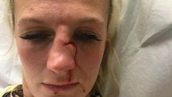 """Ex dient kooivechtster Cindy (35) rake klappen toe op straat: """"Zeven hechtingen en gebroken neus"""""""