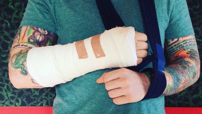 Ed Sheeran aangereden door wagen, gebroken arm brengt tour in gevaar